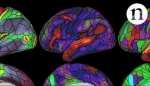 Embedded thumbnail for The ultimate brain map